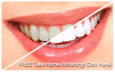 whitening-callout